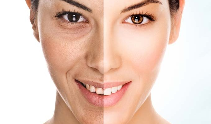 Anti Ageing Treatment In Pune Anti Aging Non Surgical Treatments